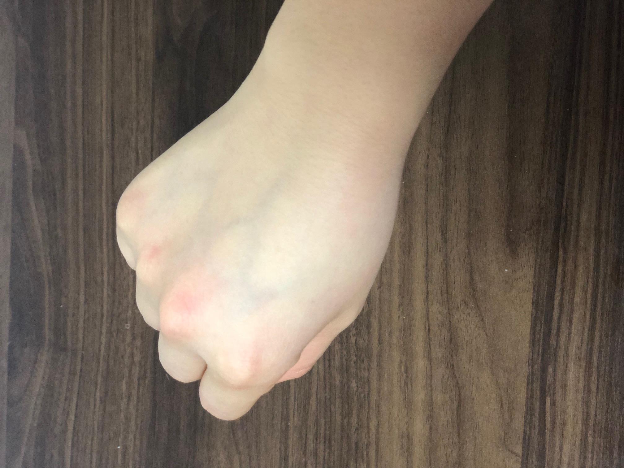 クリームを塗った後の手の甲